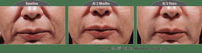 Bellafill-1
