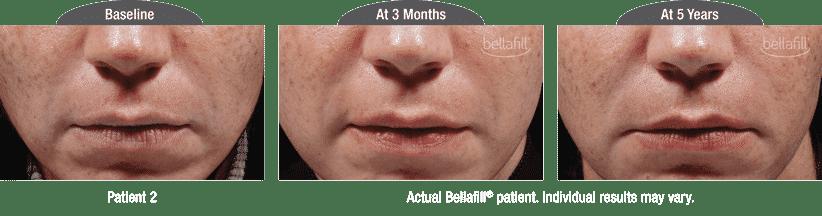 Bellafill-2
