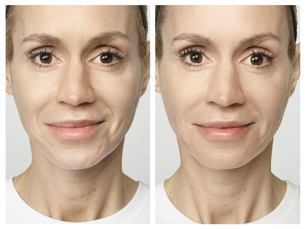 Facial wrinkles restylane woman