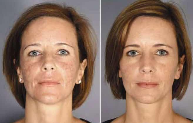 Total Fx Laser Santa Barbara Laser Skin Resurfacing
