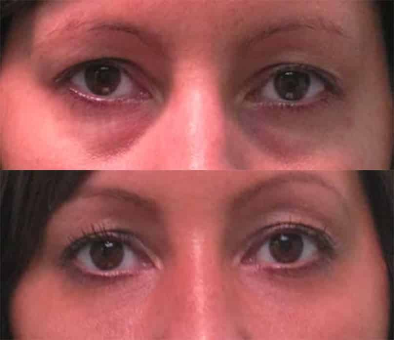 non-surgical-eyelid-lift