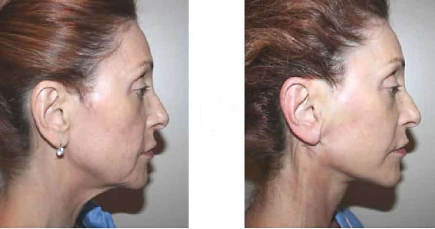 silhouette neck lift