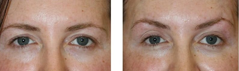 silhouette brow lift