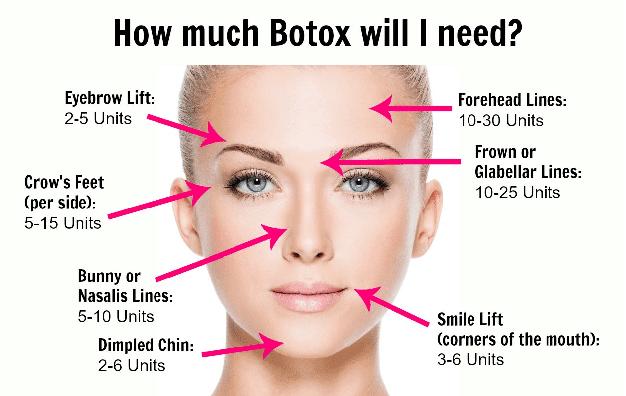 How Many Units Of Botox