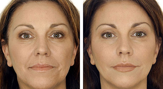 Non-surgical facial wrinkle reduction