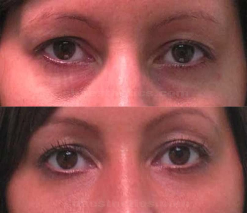 how to fix droopy eyelids without surgery