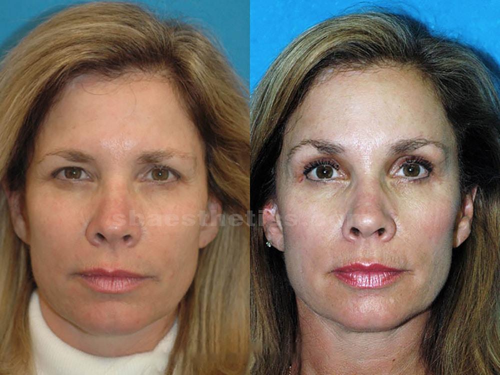 Brow Lift Surgery Santa Barbara Forehead Lift Sb Aesthetics