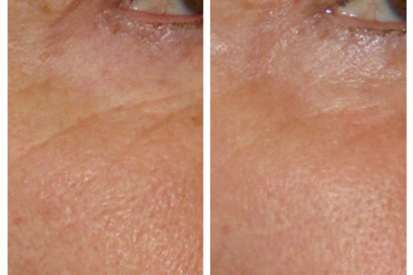 fractional-co2-skin-resurfacing