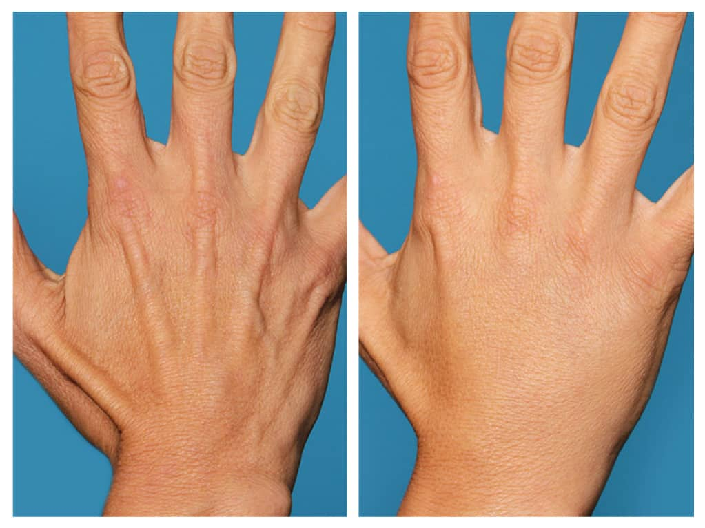 Hand Rejuvenation Santa Barbara | Radiesse for Hands | SB