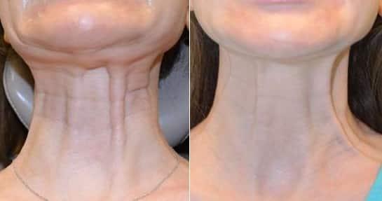 neck band