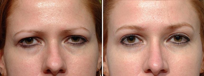 Botox Brow Lift Santa Barbara Botox Eyebrow Lift