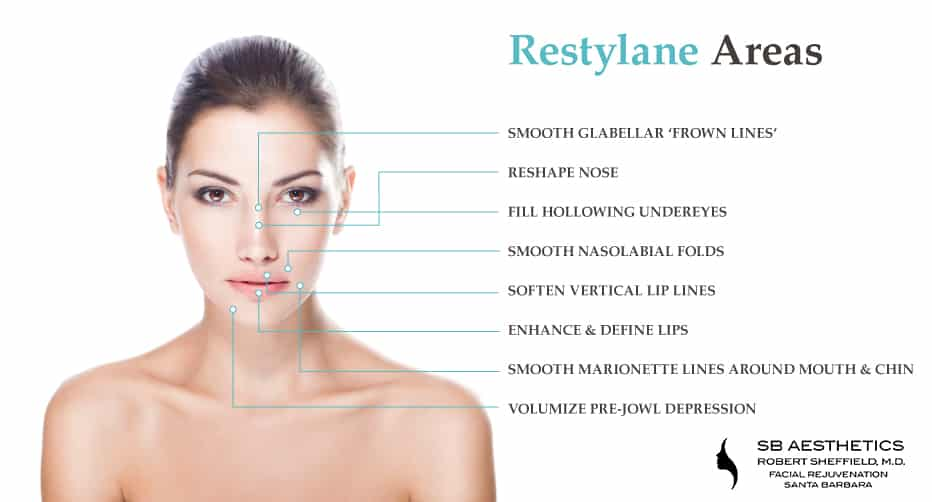 restylane-injections