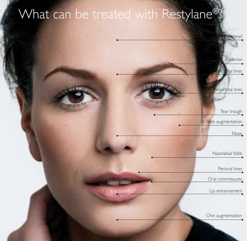 restylane-treatment-process