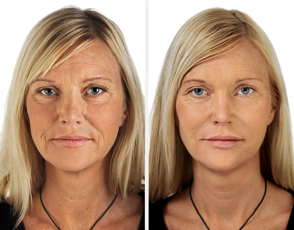 restylane-before-and-after