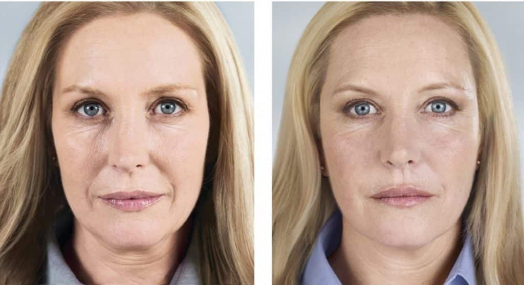 sculptra-before-and-after