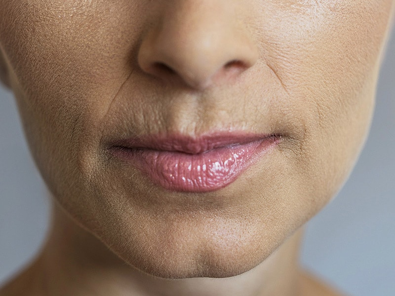 How To Get Rid Of Lines Around The Mouth
