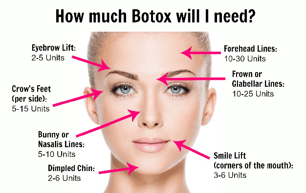 How Many Units Of Botox
