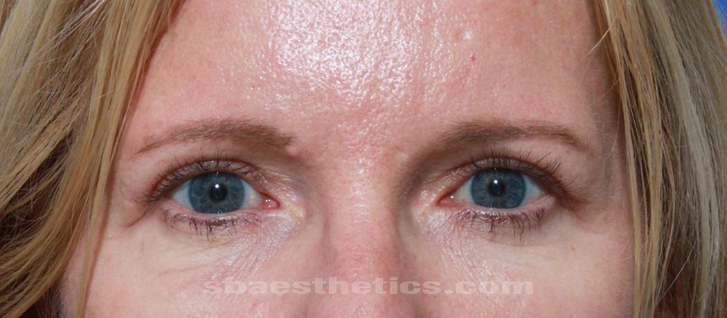 eyelid lift surgery blepharoplasty after