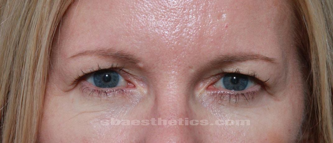 eyelid lift surgery blepharoplasty before