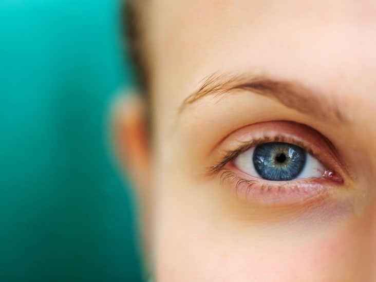 how-to-get-rid-of-droopy-eyelids