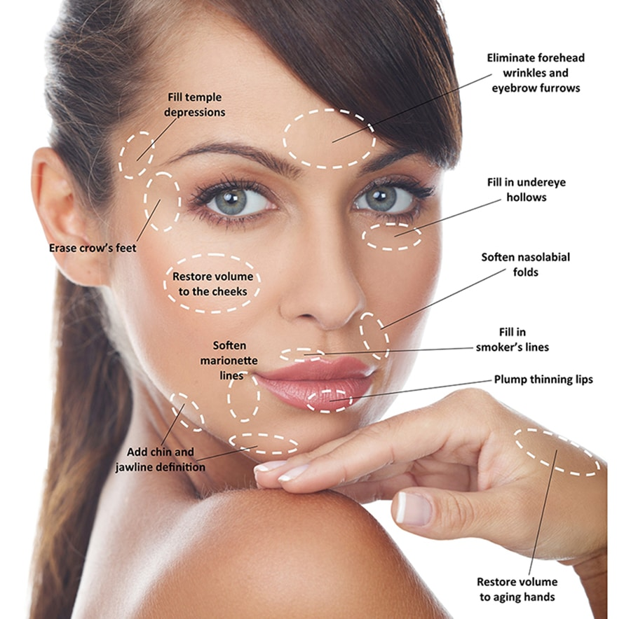 dermal fillers in santa barbara