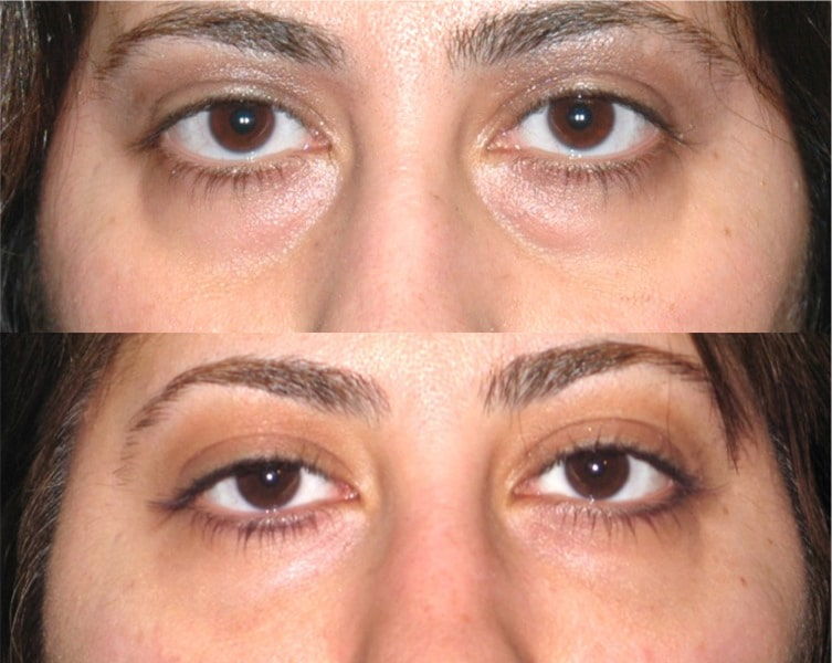 eyelid surgery in santa barbara