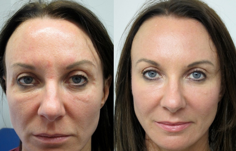 Fillers with PRP Facelift