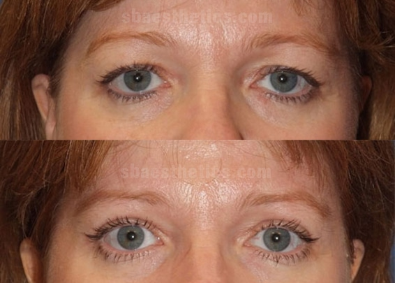 Upper-Lid-Blepharoplasty-before-after