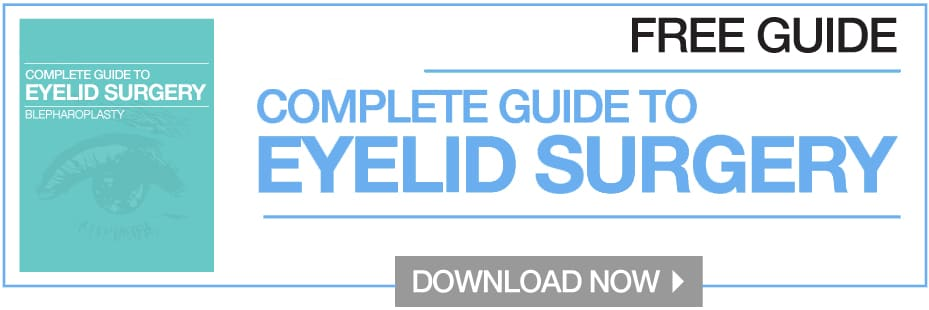 eyelid-surgery-guide-free-download
