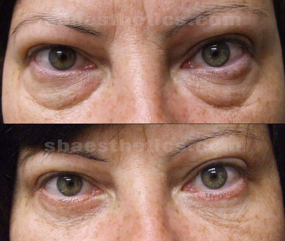 lower-blepharoplasty-before-after