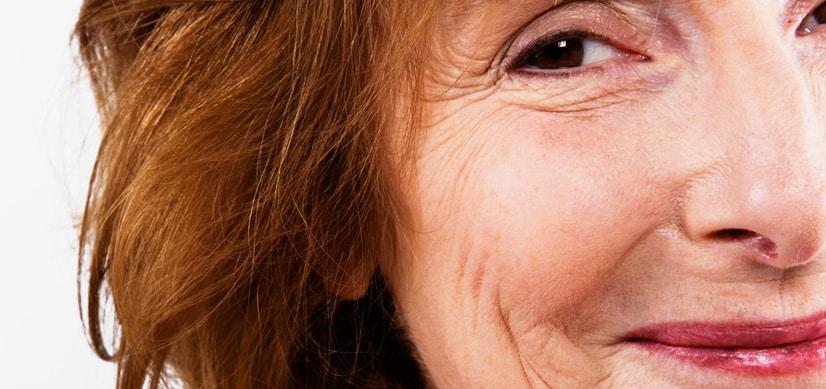 non-surgical-facial-treatment-3