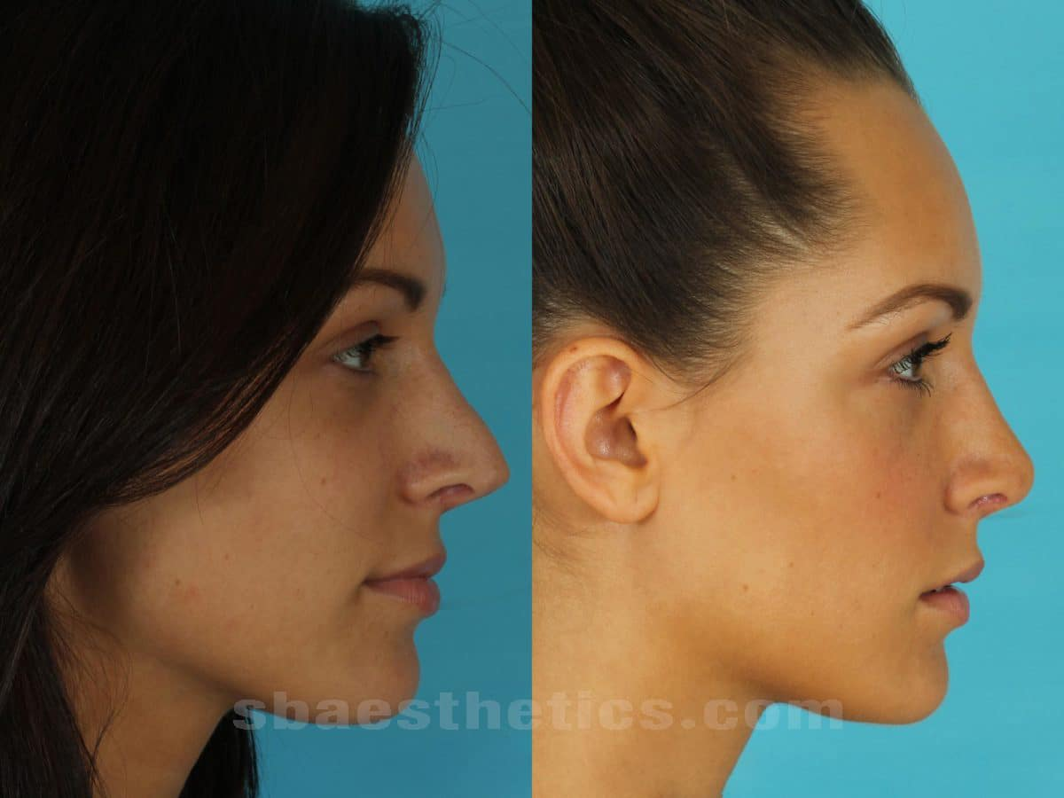 Rhinoplasty Before And After Rhinoplasty Santa Barb...