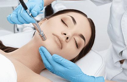 LASER SKIN RESURFACING SANTA BARBARA