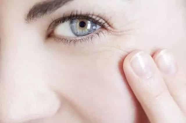 facial wrinkles santa barbara
