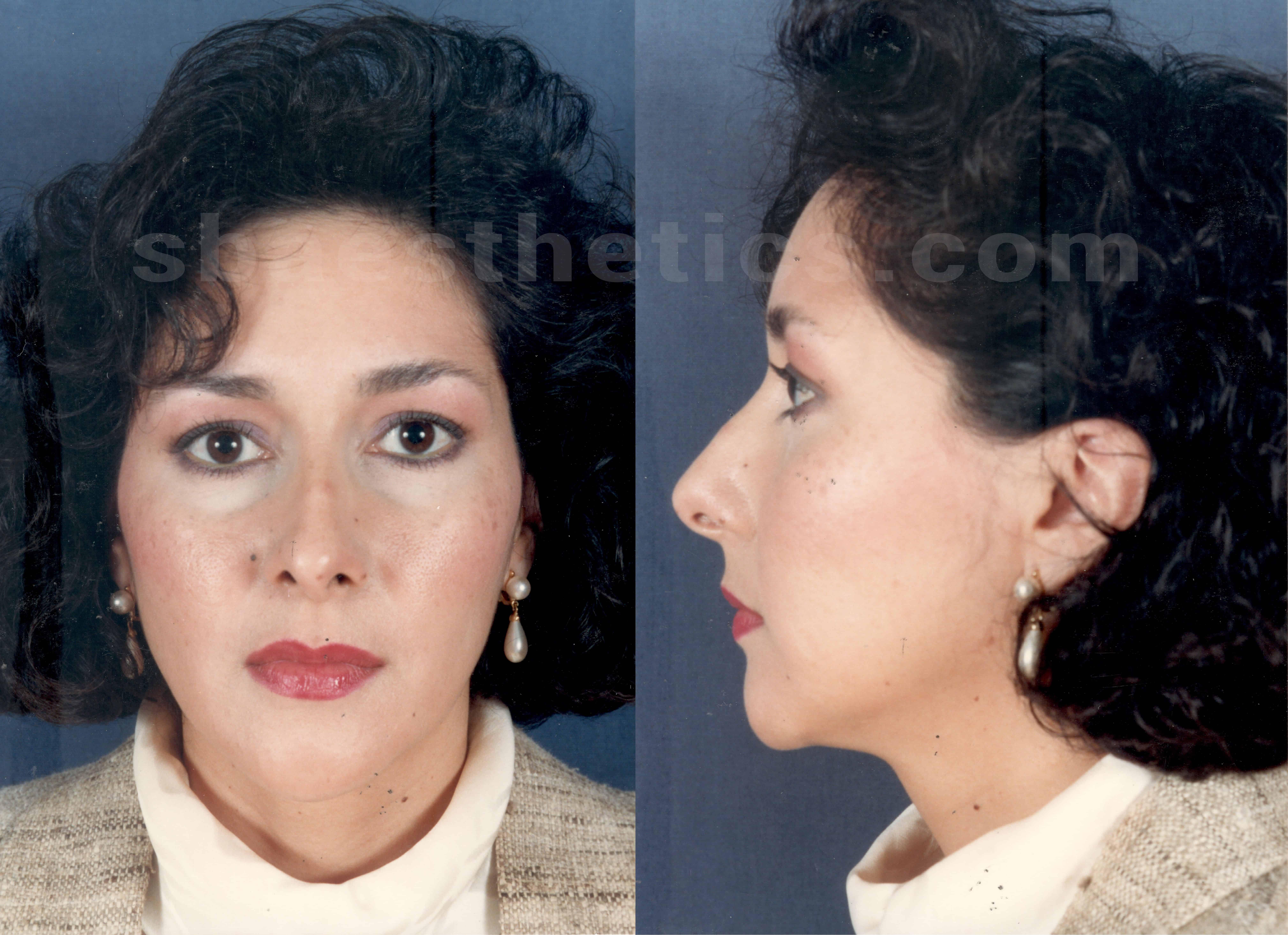 rhinoplasty-pre-op-before