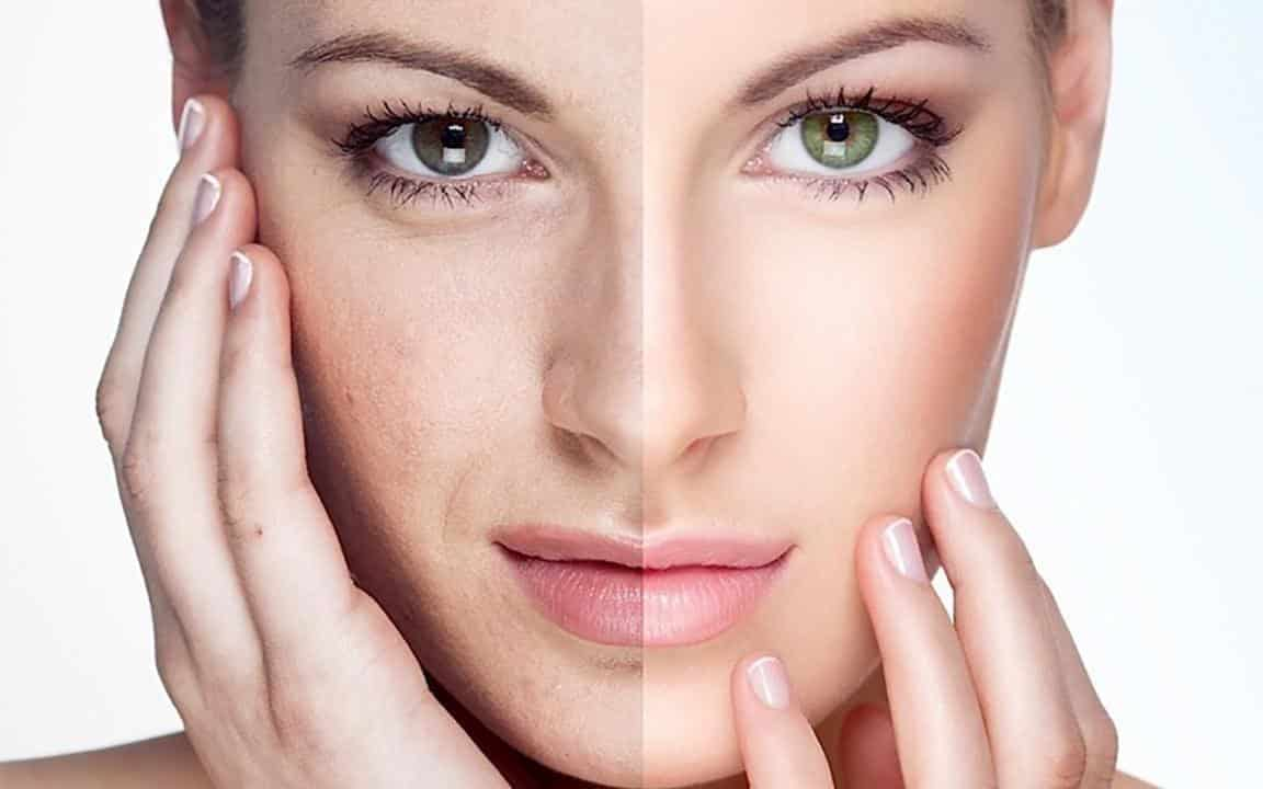 Impressive Ways To Treat Your Skin With Laser Skin Rejuvenation
