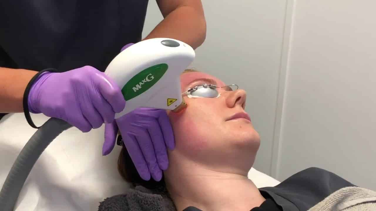 Which Areas are Best for IPL Treatments?