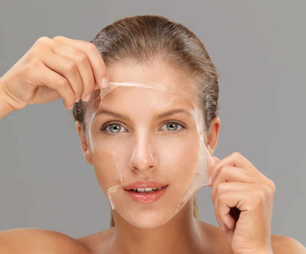What are the Benefits of a Chemical Peel?