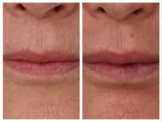 Lip Enhancement Services Offered by Santa Barbara