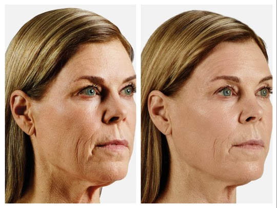juvederm in santa barbara