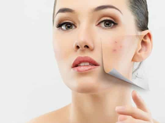 acne treatment santa barbara