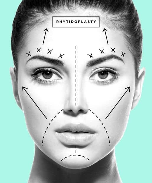 Is It True There Is No Recovery With Short Scar Facelift?