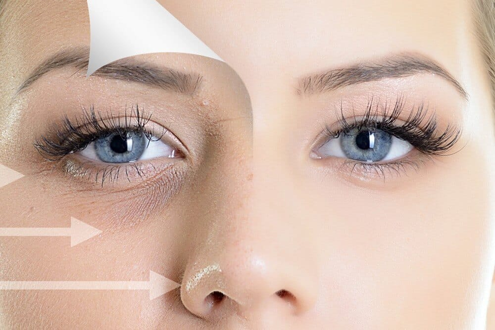Which Is The Best Under Eye Filler?