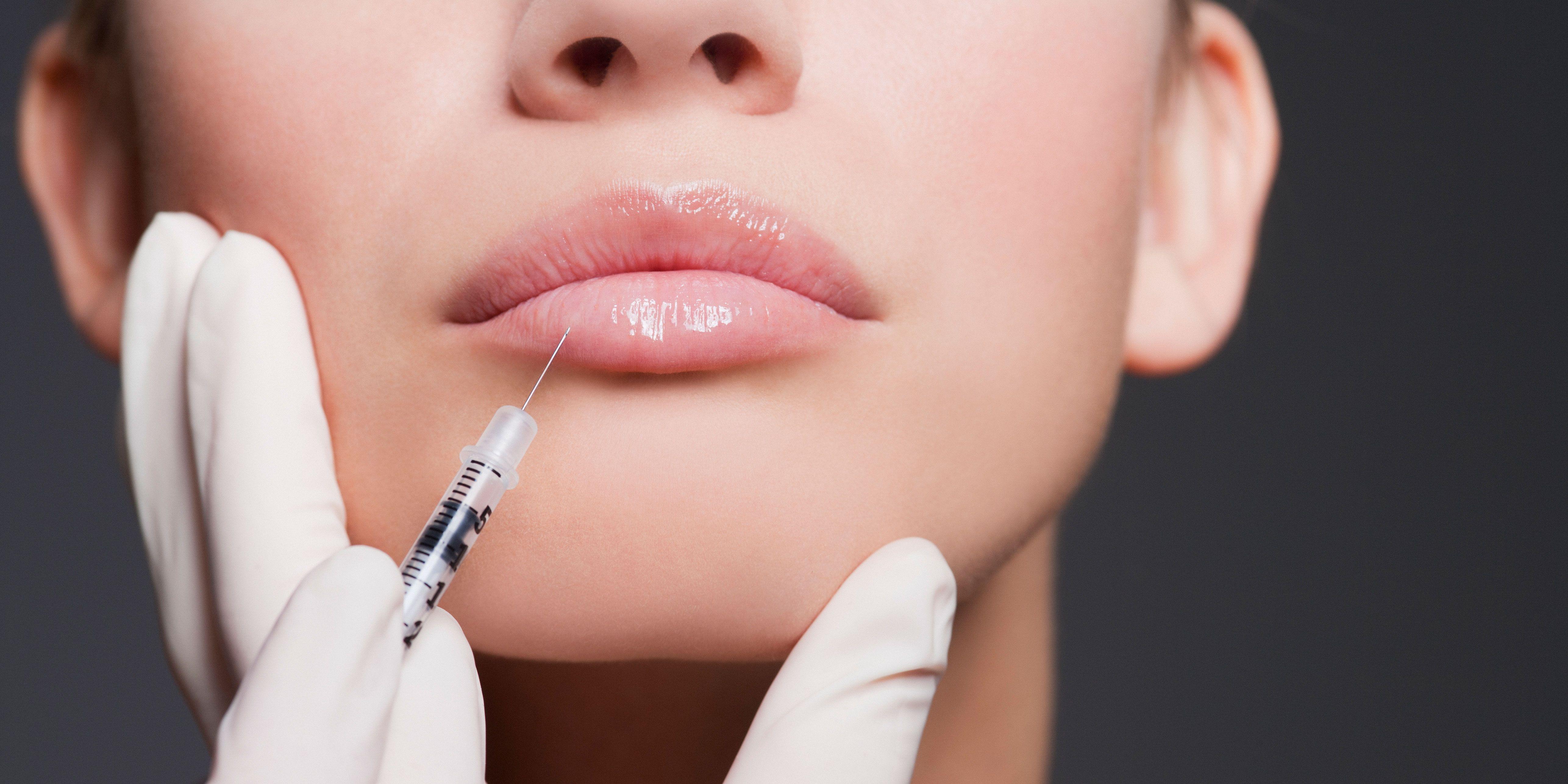 Are Lip Implants Safe