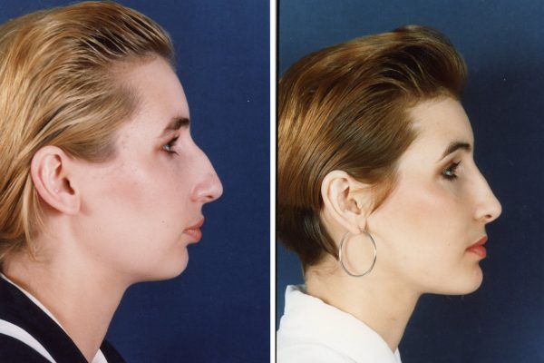 chin augmentation 1 before-after