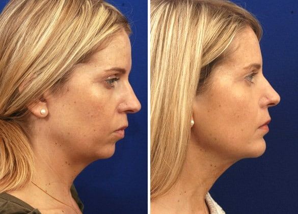 chin augmentation santa barbara