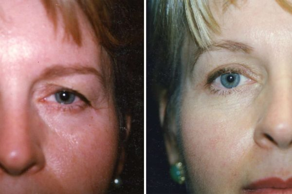eyelid surgery 1 before-after