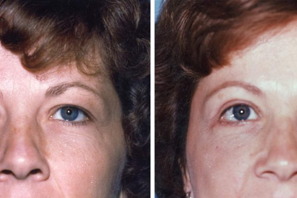 eyelid surgery 3 before-after