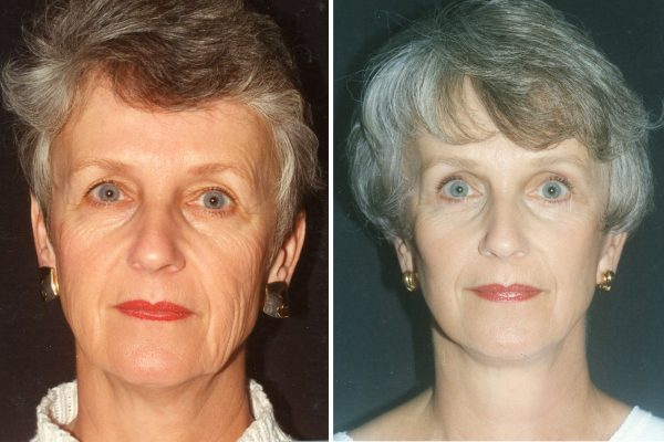 facelift 4 before-after