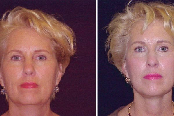 facelift 5 before-after